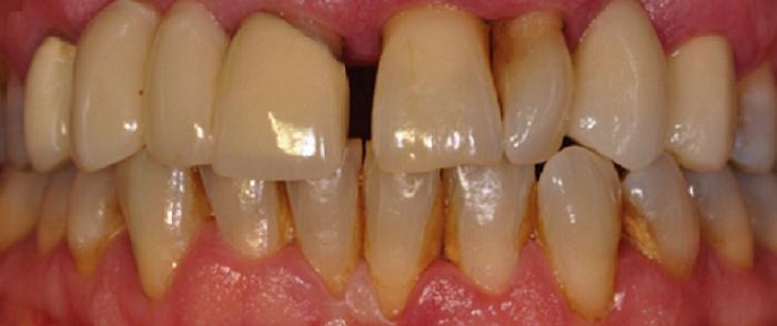 Giá lấy cao răng bằng máy siêu âm