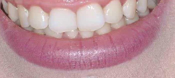 Giá lấy cao răng ở huế