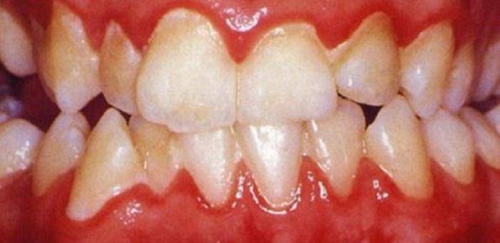 Giá lấy cao răng ở sài gòn