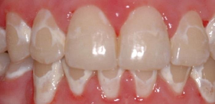 Giá lấy cao răng siêu âm