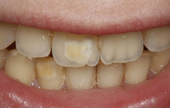 Lấy cao răng làm trắng răng giá bao nhiêu