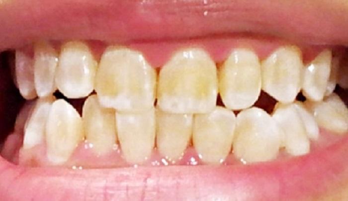 Lấy cao răng bằng cách nào