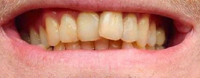 Lấy cao răng bằng máy siêu âm ở đâu