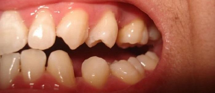 Lấy cao răng bằng phương pháp siêu âm