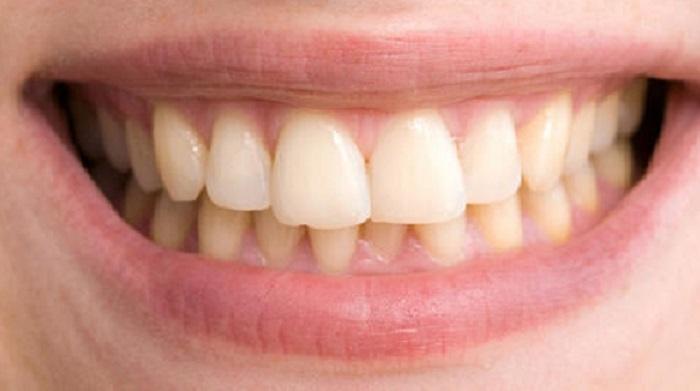 Lấy cao răng bao lâu 1 lần