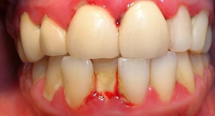 Lấy cao răng bị chảy máu