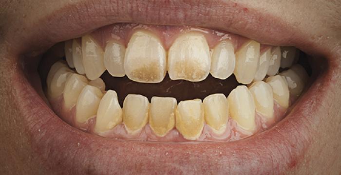 Lấy cao răng bị chảy máu có sao không