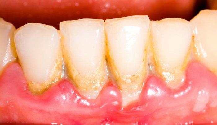 Lấy cao răng về bị ê buốt