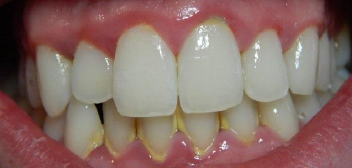Lấy cao răng bị ê buốt
