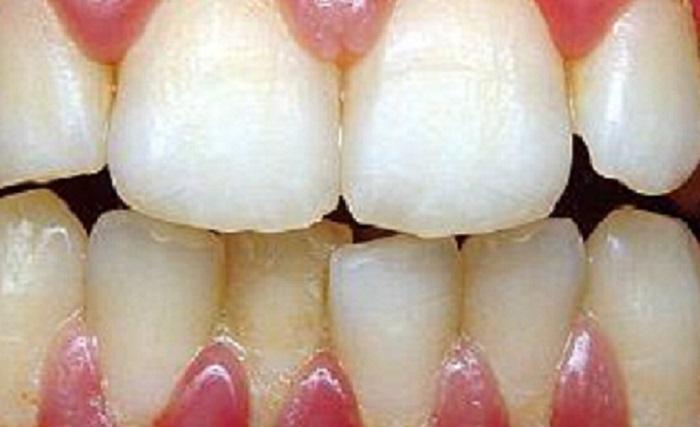 Lấy cao răng có giúp trắng răng không