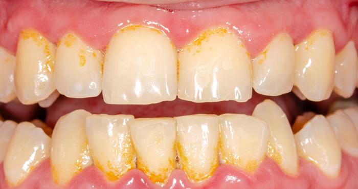 Lấy cao răng có hại cho răng không