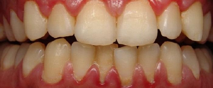 Lấy cao răng có phải kiêng gì không
