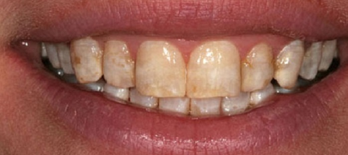 Lấy cao răng có tác hại gì không