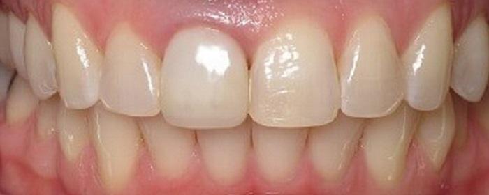 Lấy cao răng dĩ an