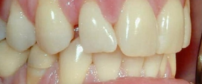 Lấy cao răng định kỳ có tốt không