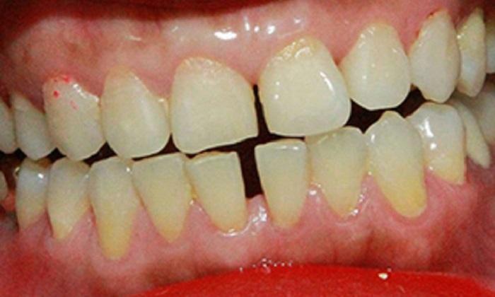 Lấy cao răng giá rẻ hà nội