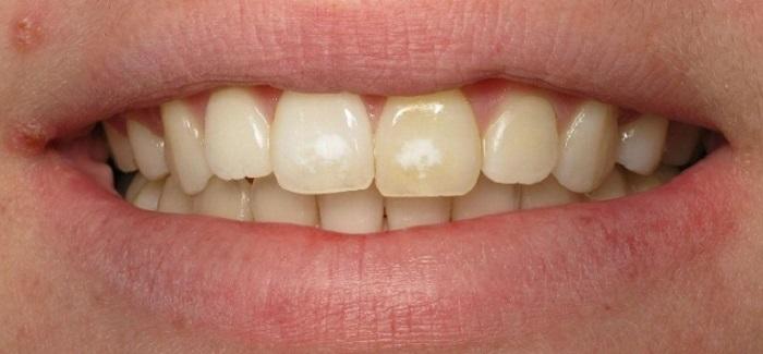 Lấy cao răng giảm giá