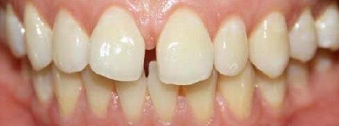 Lấy cao răng gò vấp