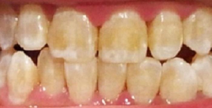 Lấy cao răng hà đông