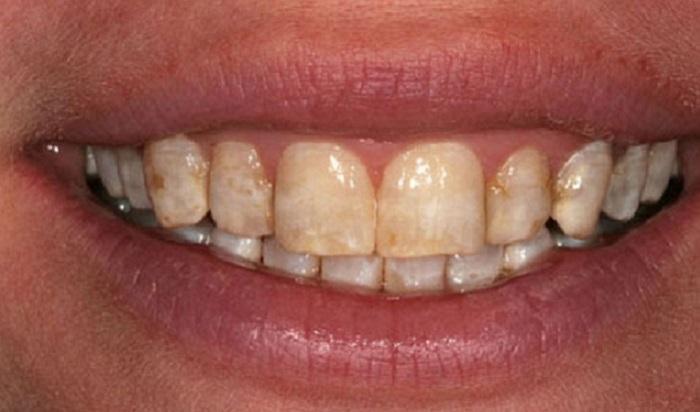 Lấy cao răng hải phòng
