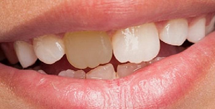 Lấy cao răng hotdeal