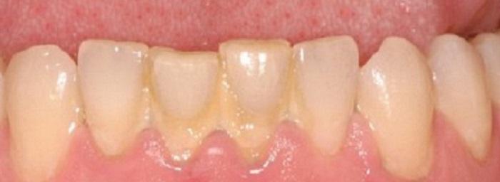 Lấy cao răng không nên ăn gì