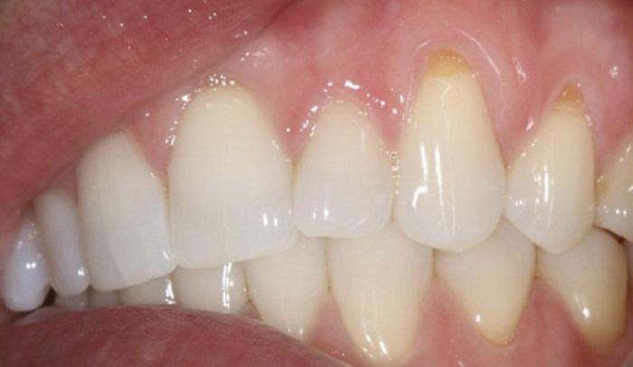 Lấy cao răng mất bao lâu thời gian