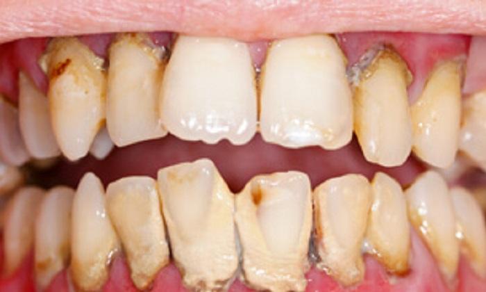 Lấy cao răng mất bao nhiêu lâu