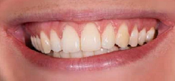 Lấy cao răng mất bao nhiêu phút