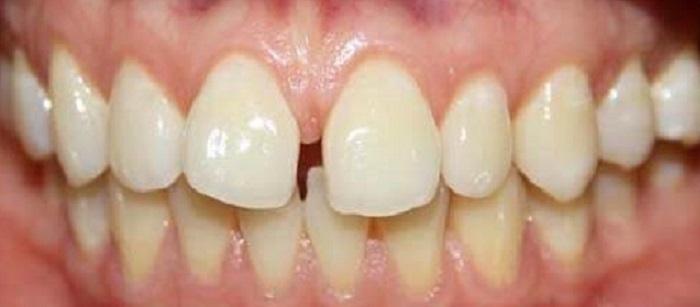 Lấy cao răng miễn phí ở hà nội