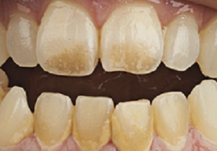 Lấy cao răng nhiều có hại không