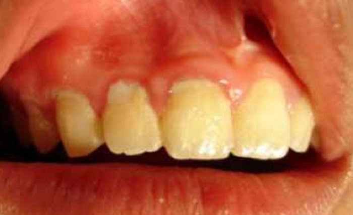 Lấy cao răng nhiều có tốt không