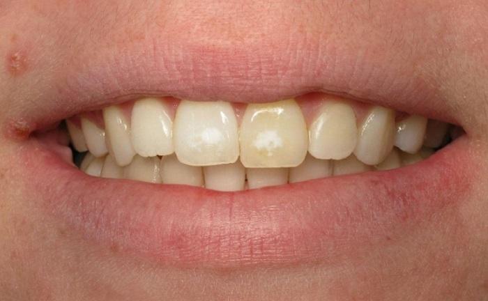 Lấy cao răng ở đà nẵng bao nhiêu tiền