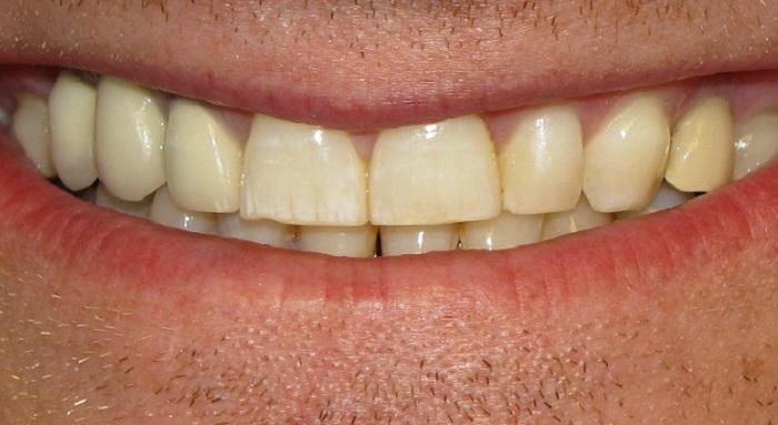 Lấy cao răng ở đâu cầu giấy