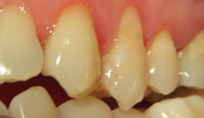 Lấy cao răng ở đâu đà nẵng