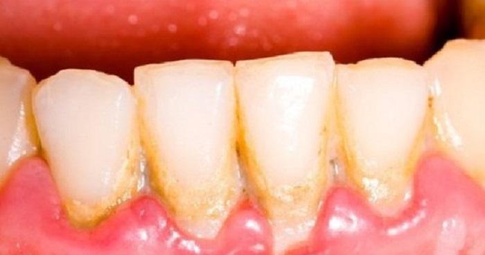 Lấy cao răng ở đâu hà nội