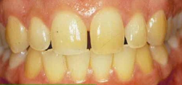 Lấy cao răng ở đâu hiệu quả