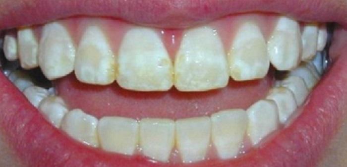 Lấy cao răng ở đâu tốt