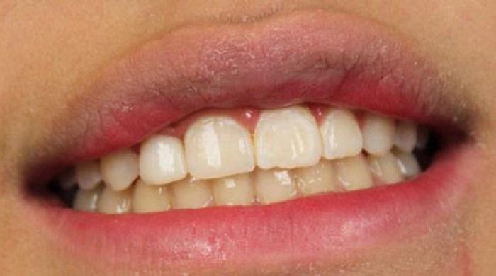 Lấy cao răng ở đâu tốt hà nội