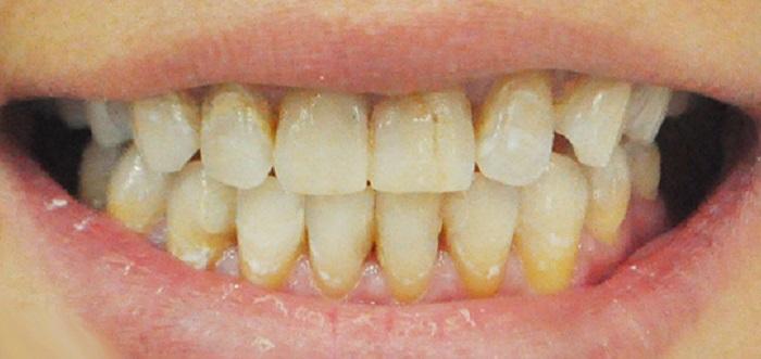 Lấy cao răng ở hà nội tốt