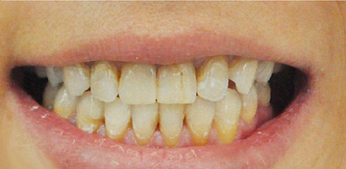 Lấy cao răng ở nhật bao nhiêu tiền