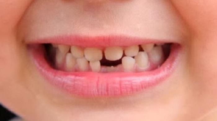 Lấy cao răng ở trẻ em