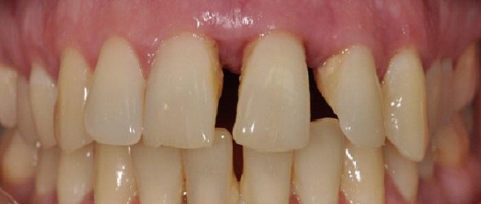 Lấy cao răng răng có trắng hơn không