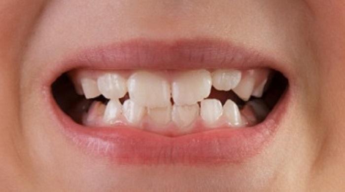 Lấy cao răng sau bao lâu được ăn