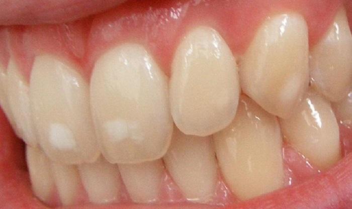 Lấy cao răng sóng siêu âm