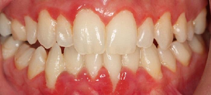 Lấy cao răng tại nhà bằng baking soda