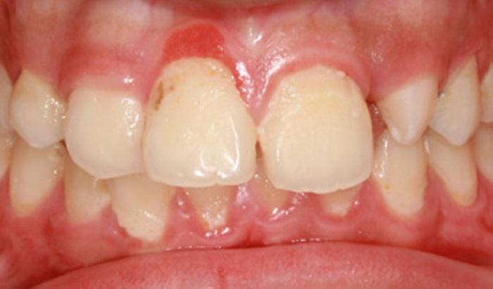 Lấy cao răng trong bao lâu