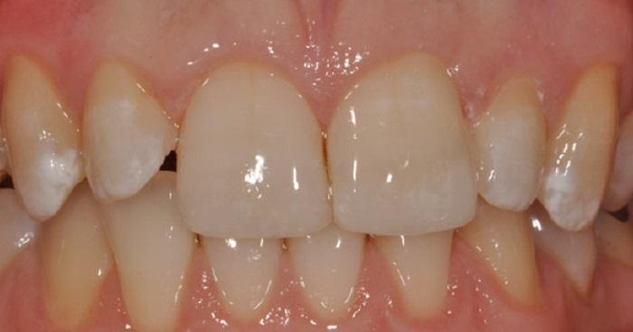 Lấy cao răng và đánh bóng