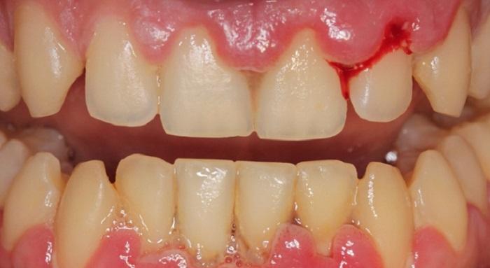 Lấy cao răng xong bị chảy máu liên tục