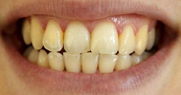 Máy lấy cao răng art